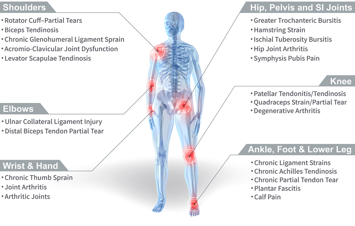 Stem Cell Treatment For Joint Pain Ashmore Osteopathic