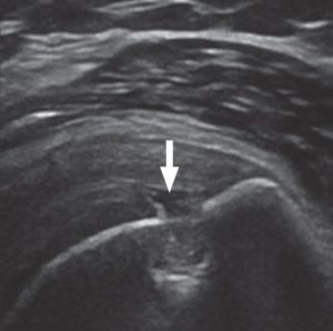 Musculoskeletal Ultrasound Ashmore Osteopathic